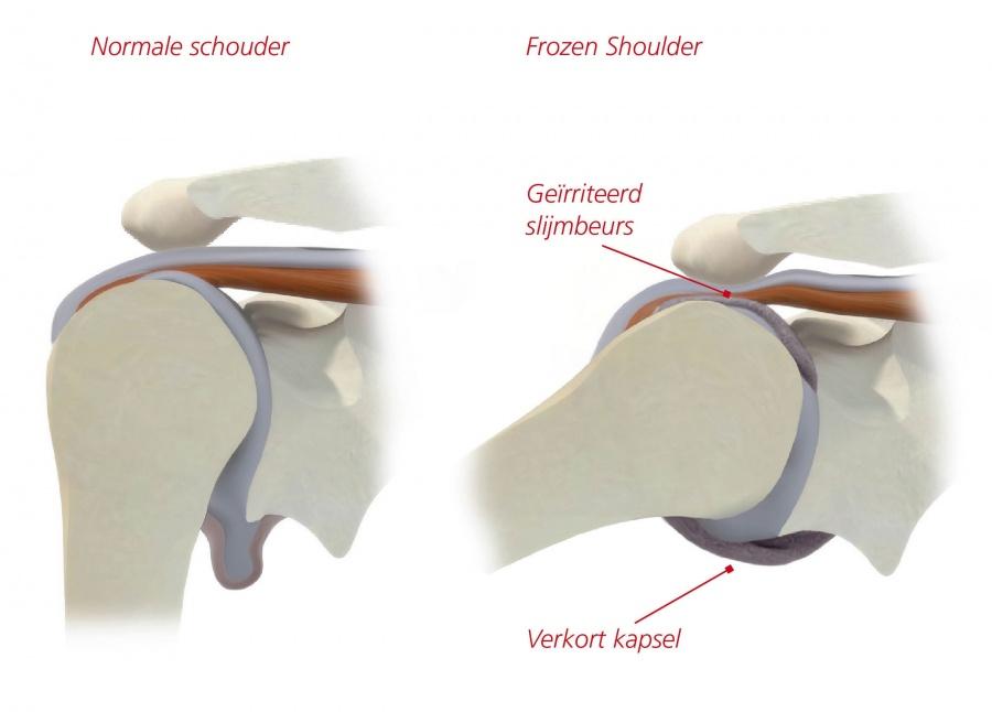 Oorzaken frozen shoulder Behandeling en operatie Revalidatie en ...