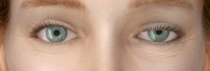 ooglidcorrectie mislukt