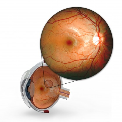- be-diabetic-retinopathy-aa