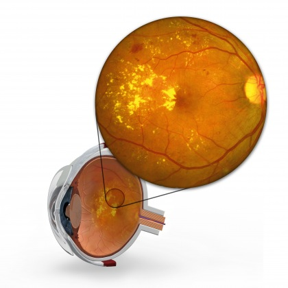 - be-diabetic-retinopathy-bb